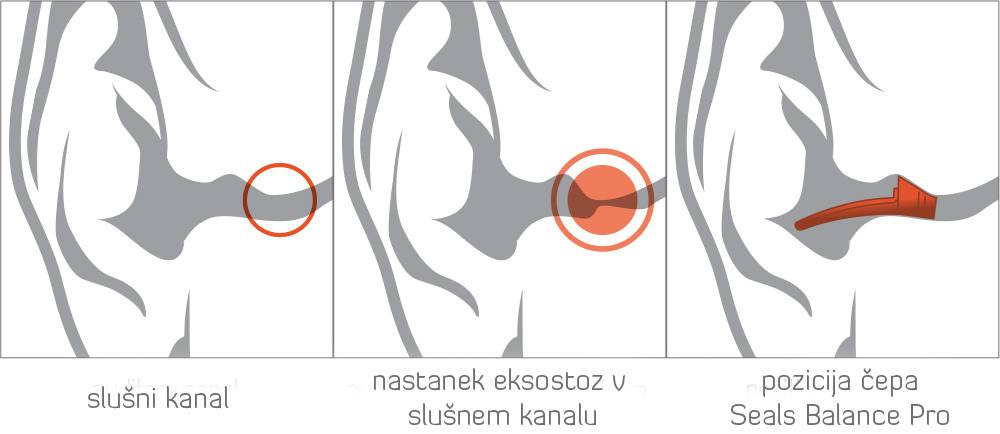 slusni-kanal